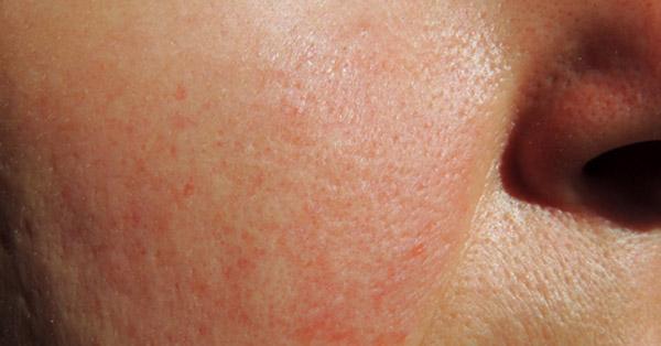 arcbőrbetegségek vörös foltok lázas felnőtteknél bőrkiütés vörös foltok formájában