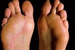 A psoriasis kezdeti stádiumában: tünetek és kezelés