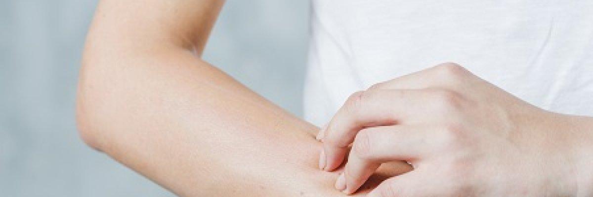 Viszketés: 5 durva belgyógyászati betegség legelső tünete - Egészség   Femina