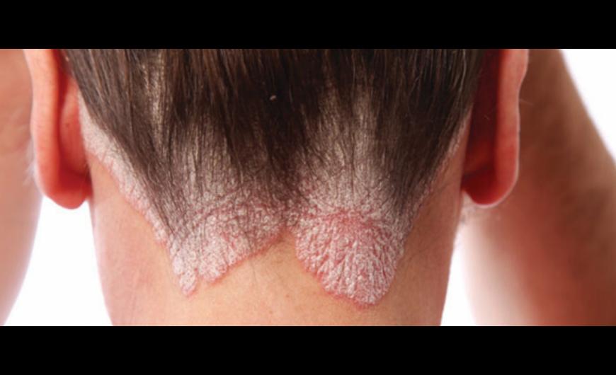 a pikkelysömör hatékony kezelésének felülvizsgálata Thai krém pikkelysömörhöz