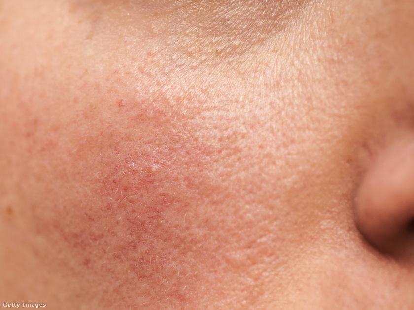 vörös foltok az arcon hideg állapotban gyógyszerek pikkelysömörre az arcon