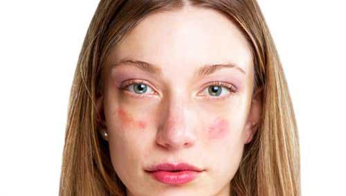 az arcát fagytól vörös foltok borítják