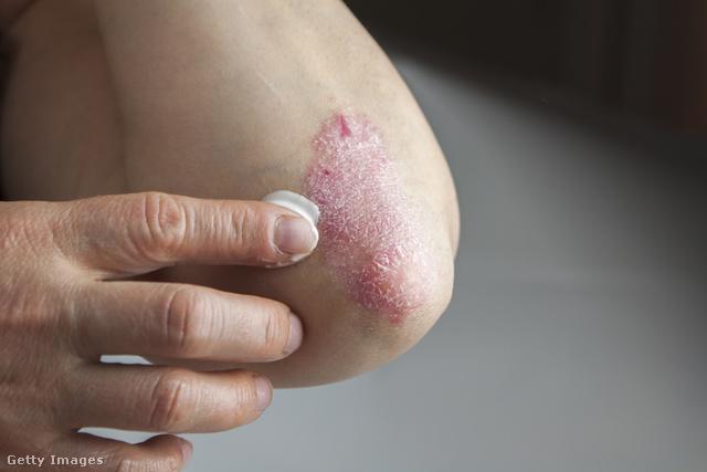 hogyan kell kezelni az ujjak pikkelysömörét