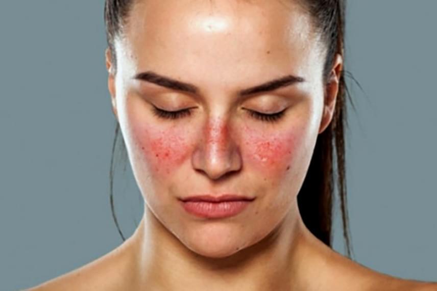 vörös folt jelent meg az arcon és fáj
