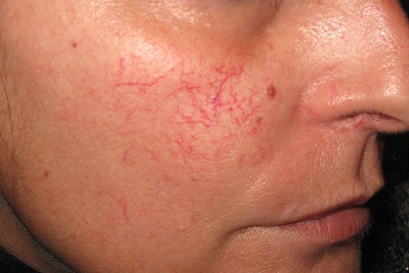 összehúzza az arcot és a vörös foltokat lábak nagyon fájó vörös foltok jelentek meg