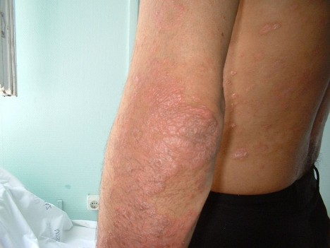 Szteroid injekció 4 fajtája 7 betegség kezelésére [teljes leírás]