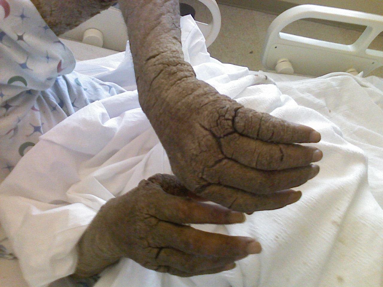 a lábán a piros folt forróbban fáj