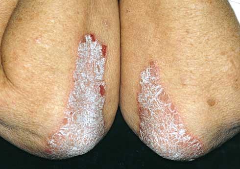 pikkelysömör kezelése kecskzsírral vörös folt és gyűrű a bőrön
