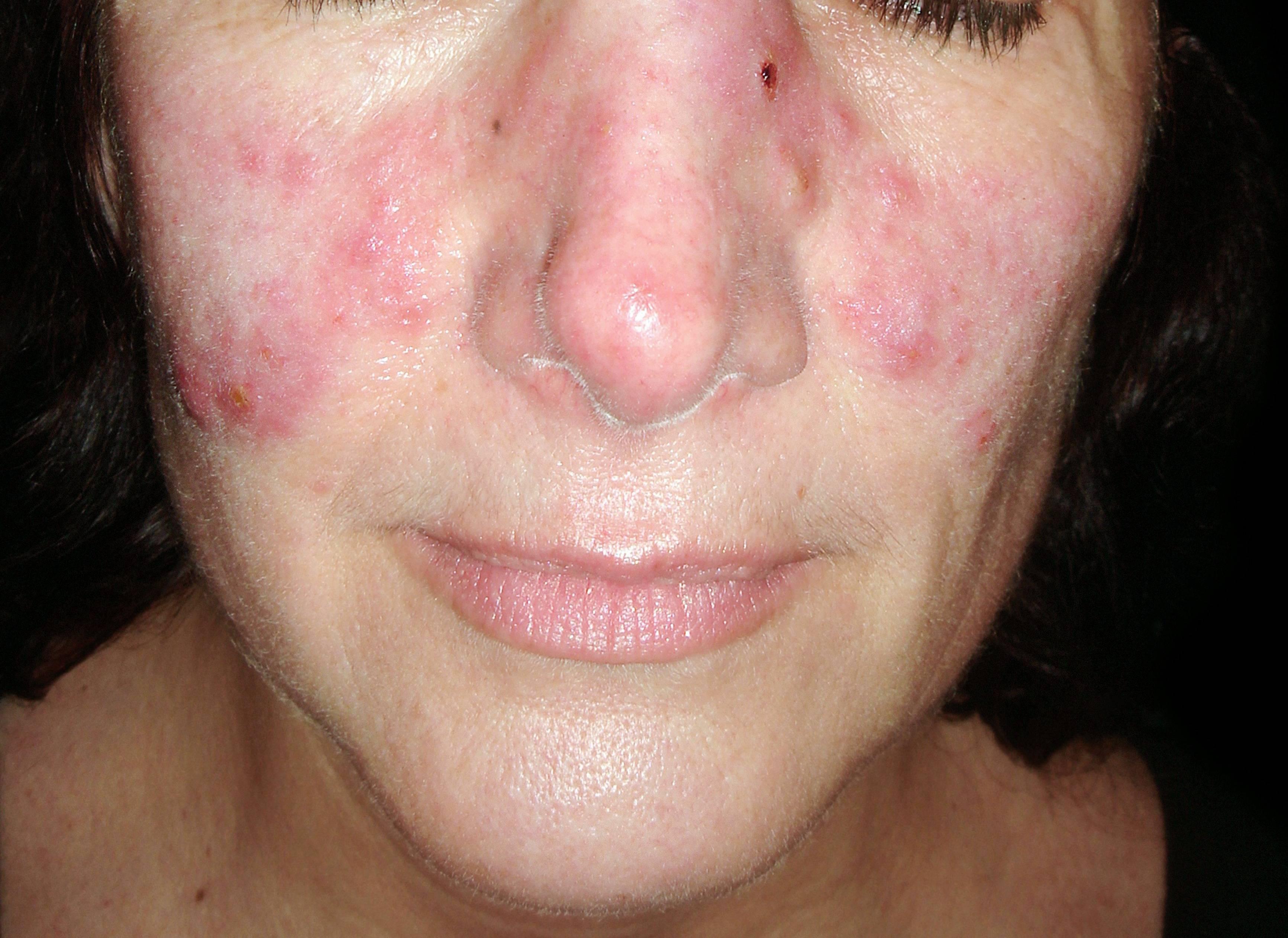 vörös foltok az arcon fejbőrön szakállas területen