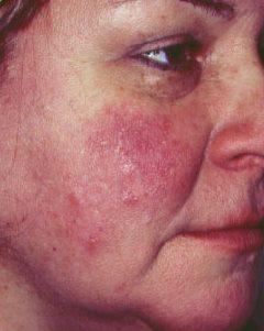 vörös foltok az arcon onkológiával