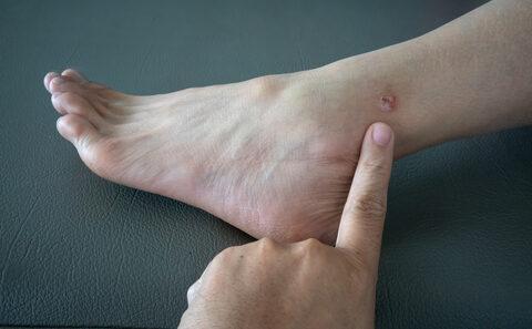 vörös foltok a lábakon ödéma után