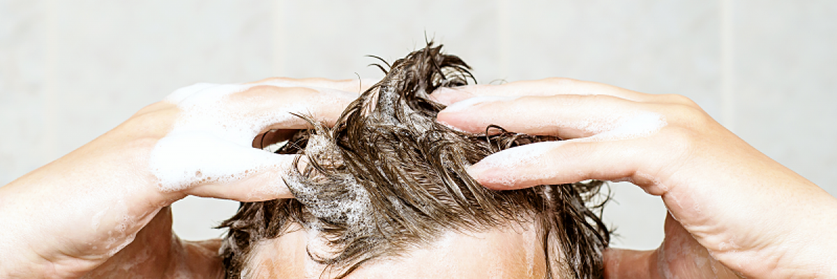 hogyan kell kezelni a fejbr pikkelysmr dermatitist