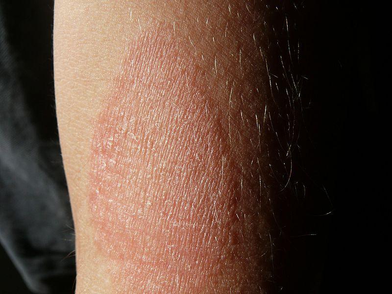 Kiütések, bőrtünetek