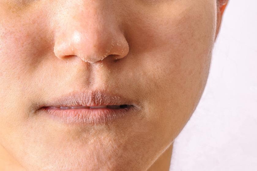 a comb belsejében vörös folt viszket vörös anyajegyet okozhat az arcon