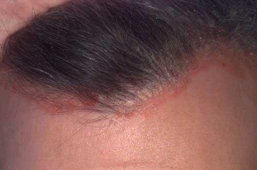 viszkető fejbőr pikkelysömör kezelése