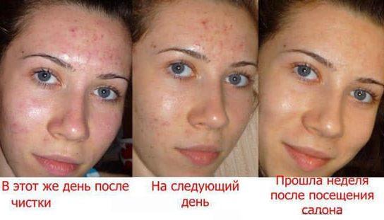Foghúzás után duzzanat, változóan sötét foltok az arcon