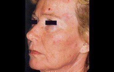 az arc bőrét vörös foltok borítják