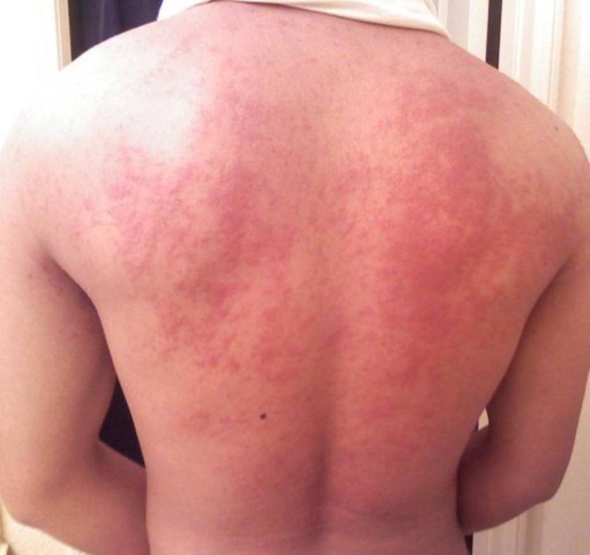 vörös folt a szemhéj kezelésén bőrsapka krém vélemények a pikkelysömörről