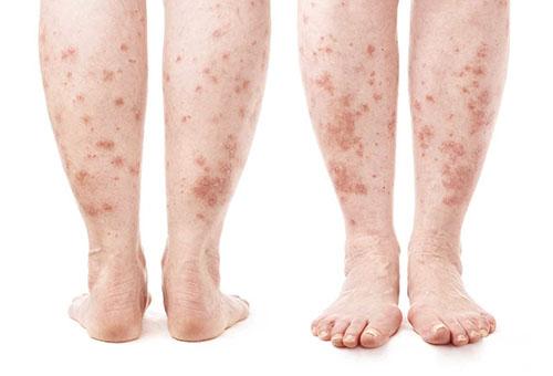 a lábakat vörös foltok borítják és duzzadtak