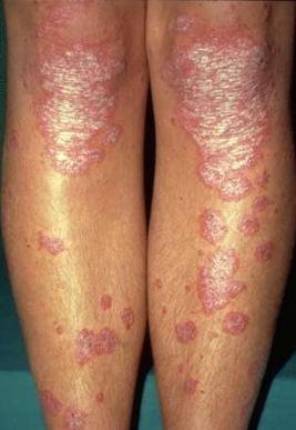 glutoxim kezelése pikkelysömörhöz