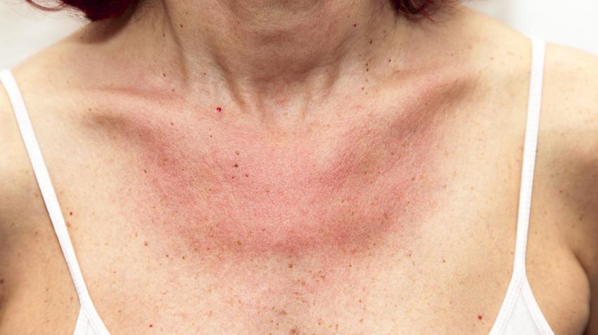 miért jelennek meg vörös foltok az arcon és a nyakon