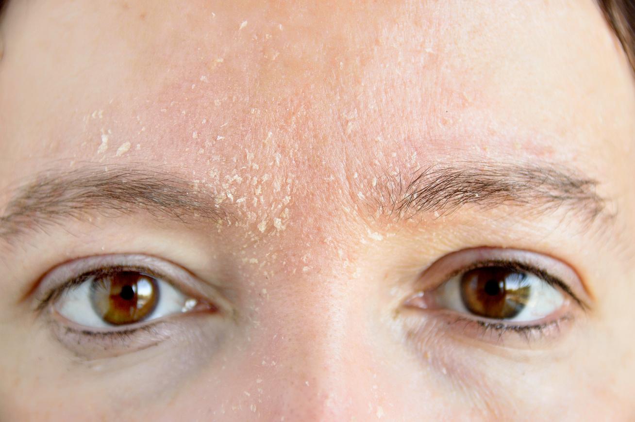 hogyan lehet eltávolítani a vörös foltokat a dermatitis után kenalog pikkelysömör kezelése