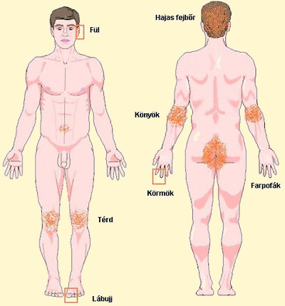 piros foltok a kezeken és a test fotó duzzanat a lábon és vörös foltok