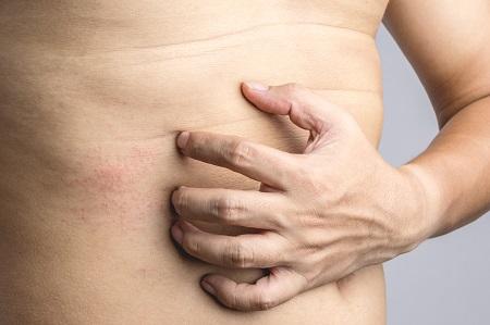 vörös foltok jelentek meg a háton és a gyomorban