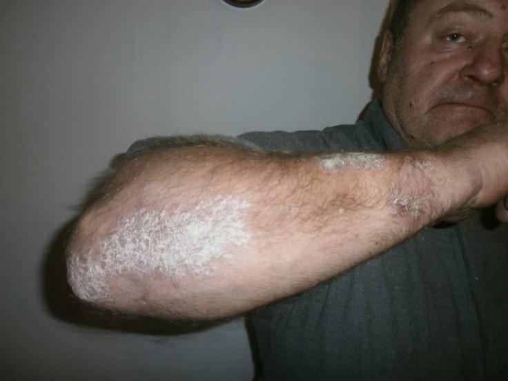 kiütés a bőrön vörös foltok formájában felnőtteknél hőmérséklet után