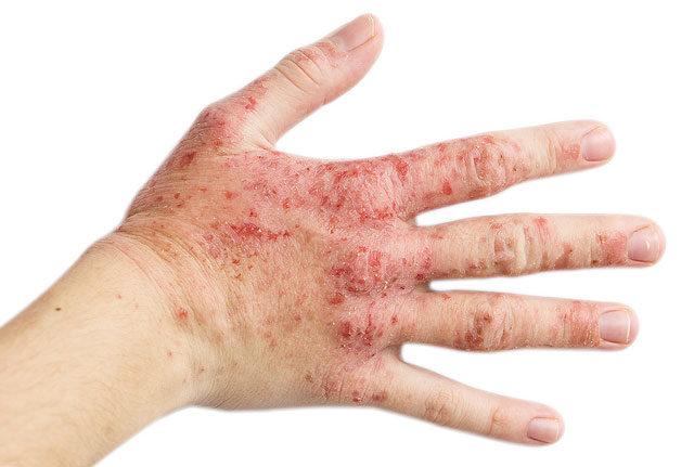 vörös folt jelent meg a kézen, és lehámlik viszketés és vörös foltok a lábakon mi ez