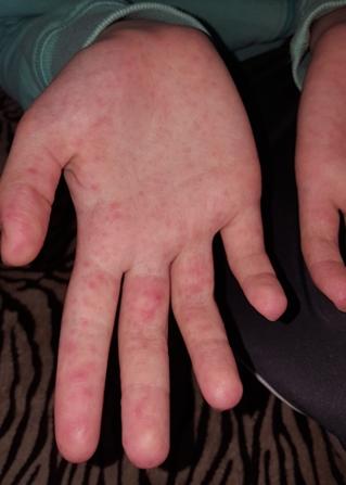 vörös foltok jelentek meg az ujjakon és a lábujjakon)