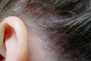 Hogyan gyógyítsuk meg a pikkelysömört otthon állandóan népi gyógymódokkal és gyógyszerekkel