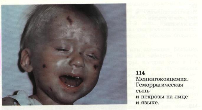 A bőr gombás megbetegedései | Kárpátalja
