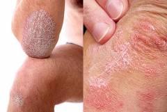 Psoriasis kezelése fejbőr homoktövis olaj