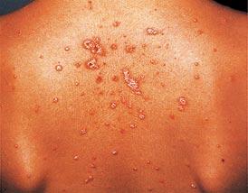 romania pikkelysömör kezelése viszkető vörös foltok az arcon és a kezeken