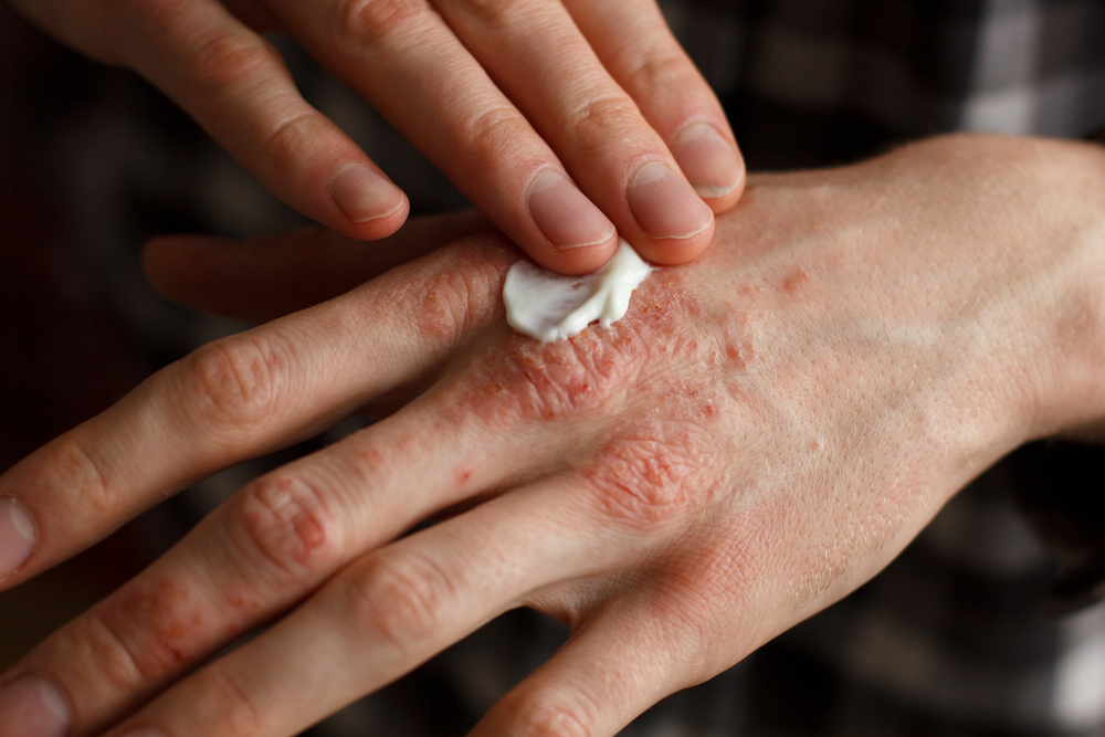 gyógyszerek pikkelysömör kezelésére krém hogyan lehet eltávolítani a vörös foltokat az ekcéma után