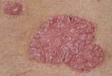 peptidek pikkelysömör kezelésére kiütés a lábakon vörös foltok formájában, viszketés felnőtteknél