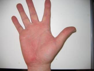 duzzadt ujjak vörös foltok