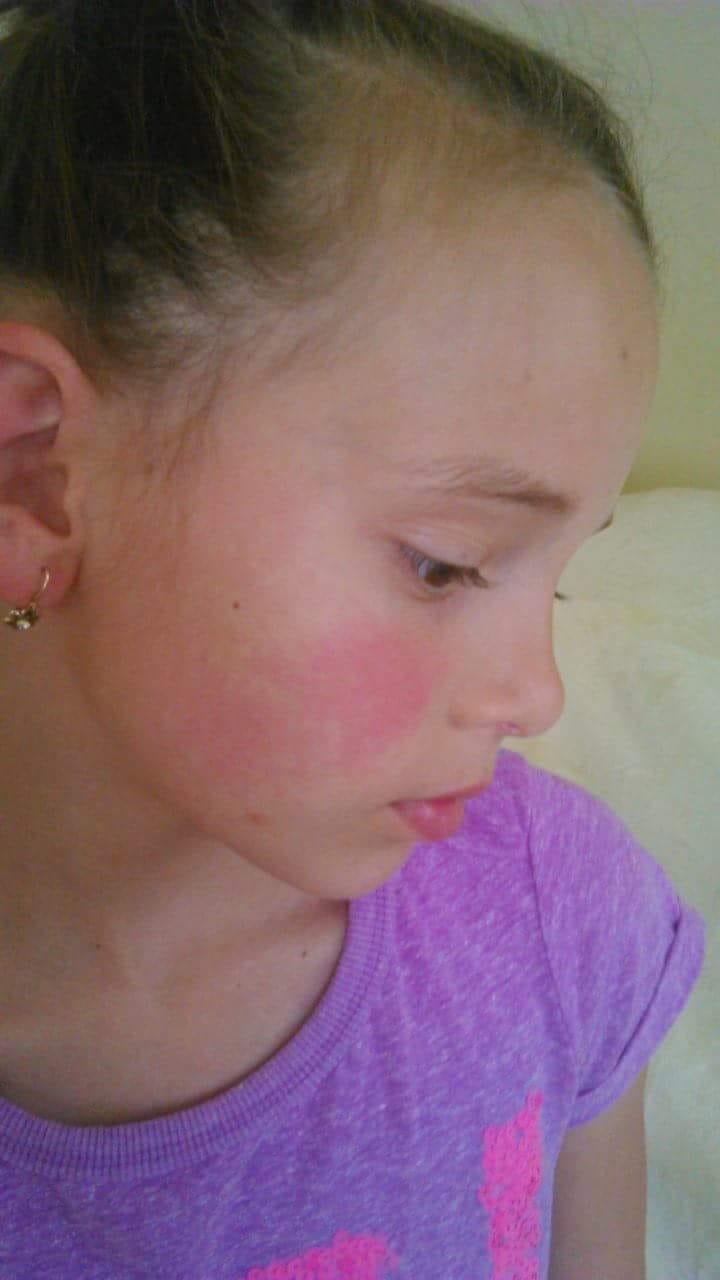 torokfájás és vörös foltok az arcon
