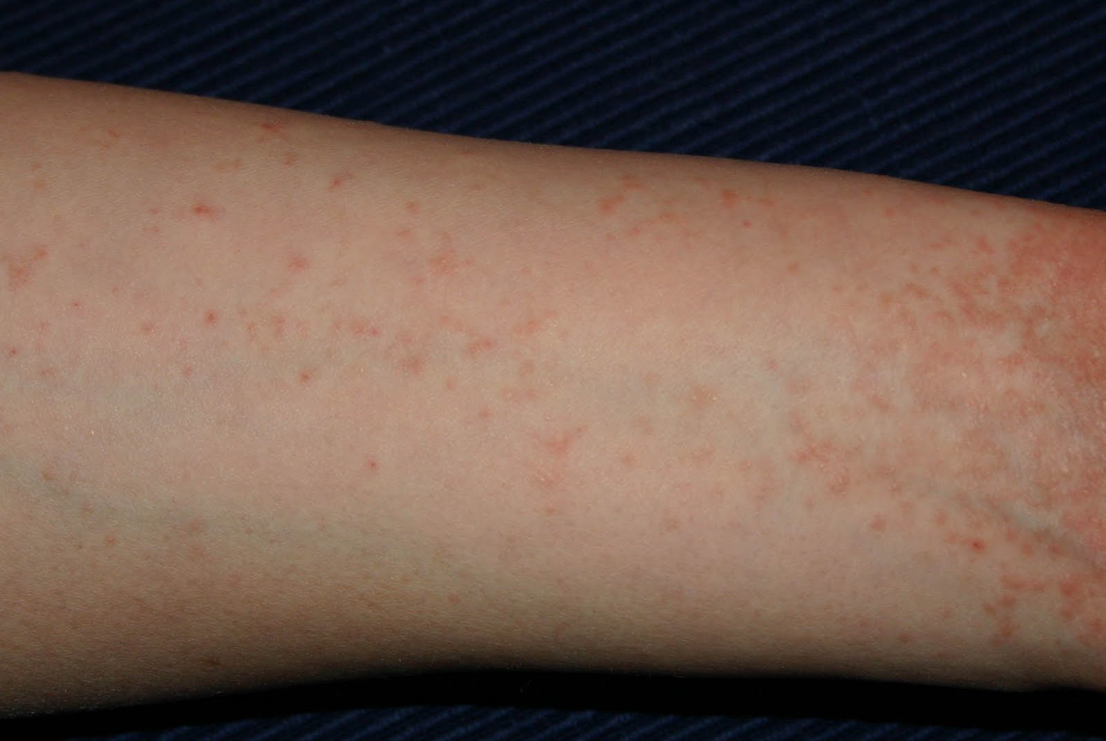 vörös folt nő a lábán diólevél pikkelysömör kezelése