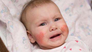 a bőrt vörös foltok borítják, amelyek viszketnek krém tehén pikkelysömörhöz