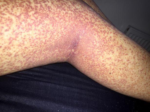 a lábán alul piros foltok fejlett kezelések pikkelysömörhöz