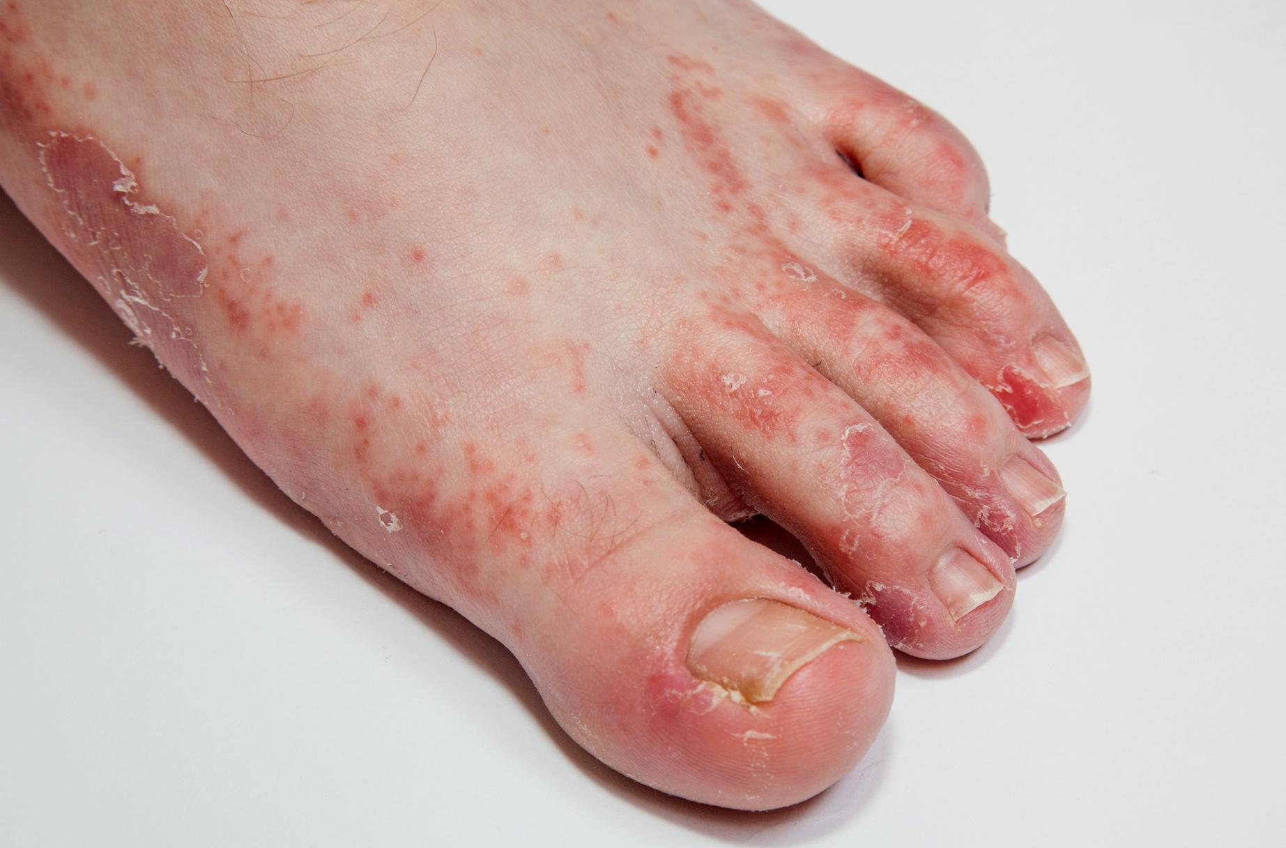 pikkelysömör kezelése hirudoterápia vörös foltok a lábak között viszketnek
