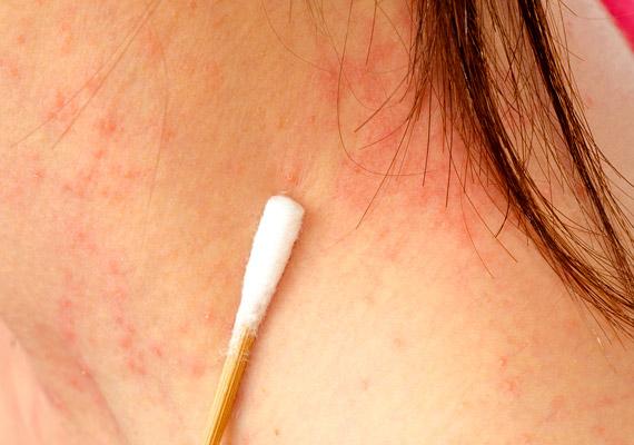 a mellkason vörös foltok viszketés kezelés