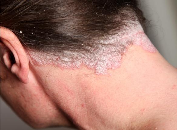 a pikkelysömör kezelésének hatékonysága piros foltok jelennek meg a hát alsó részén viszket
