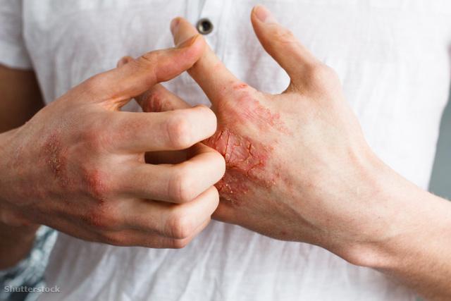 együtt kezeljük a pikkelysömör leégés után vörös foltok jelentek meg a gyomorban