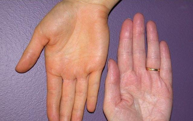 Tenyérviszketés: ezek állhatnak a gyakori tünet hátterében - Egészség | Femina