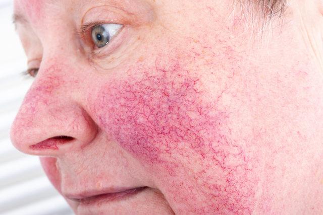 mi segíthet az arc vörös foltjain pikkelysömör a könyökön fotó és kezelés