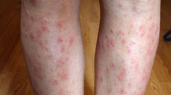 piros foltok jelennek meg a bőrön nyáron