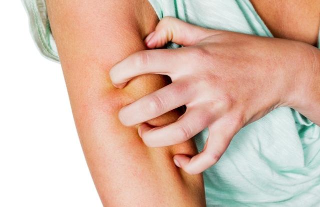 safaga pikkelysömör kezelésére hogyan kell kezelni a pikkelysmrt az emberi fejn